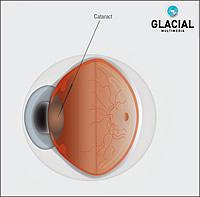 Pannu Laser & Vision Institute